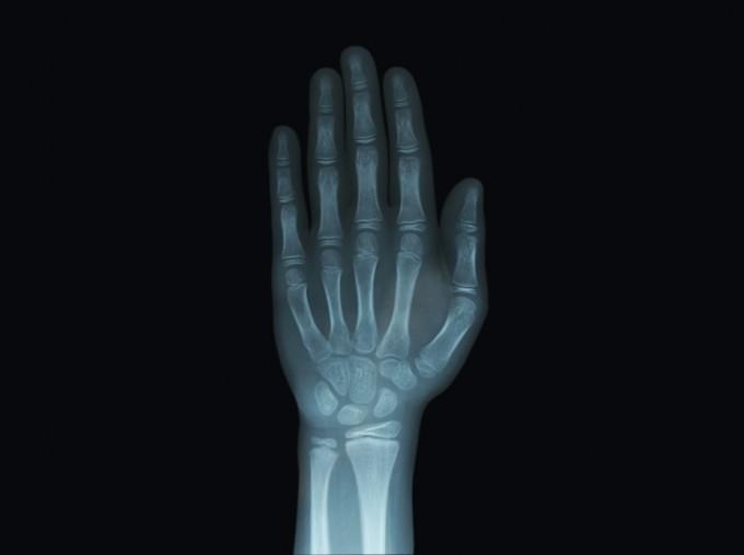성장기 어린이의 손뼈를 엑스선 촬영해보면 성장판을 확인할 수 있다. 어린이들은 뼈와 뼈 사이 성장판 부분에 연골세포가 많이 남아 있다. 성장호르몬의 영향으로 연골세포가 분열해 점점 많아지고 칼슘이 쌓이면서 단단한 뼈로 변한다. 게티이미지뱅크 제공