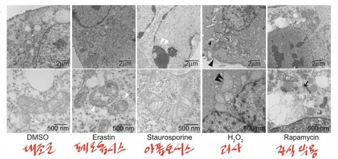 지난 2012년 페롭토시스라는 새로운 세포사멸 방식이 처음 보고됐다. 맨 왼쪽 대조군(정상 세포)과 비교했을 때 페롭토시스가 일어나는 세포는 미토콘드리아가 쭈그러졌고(흰 화살촉) 아폽토시스가 일어나는 세포는 염색질(chromatin)이 수축돼 있다(흰 쌍 화살촉). 괴사가 일어나는 세포는 세포질과 소기관이 부풀고 세포막이 터지고(검은 화살촉) 자식작용이 일어난 세포는 이중막 소체가 형성돼 있다(검은 화살표). ′셀′ 제공ㄷㄷㄷ