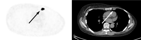 재발 유방암의 여성호르몬 수용체를 18F-FES 양전자방출단층촬영(PET)으로 검사한 사진(왼쪽). 여성호르몬 수용체가 양성이면 암이 까맣게 표시된다. 컴퓨터단층촬영(CT) 영상(오른쪽)에 나타난 암 조직과 위치가 같다. 여성호르몬 수용체가 음성이면 CT나 초음파 검사 등에서는 암 조직이 보이지만, 18F-FES PET 검사 영상에서는 암 조직이 나타나지 않는다. 서울아산병원 제공