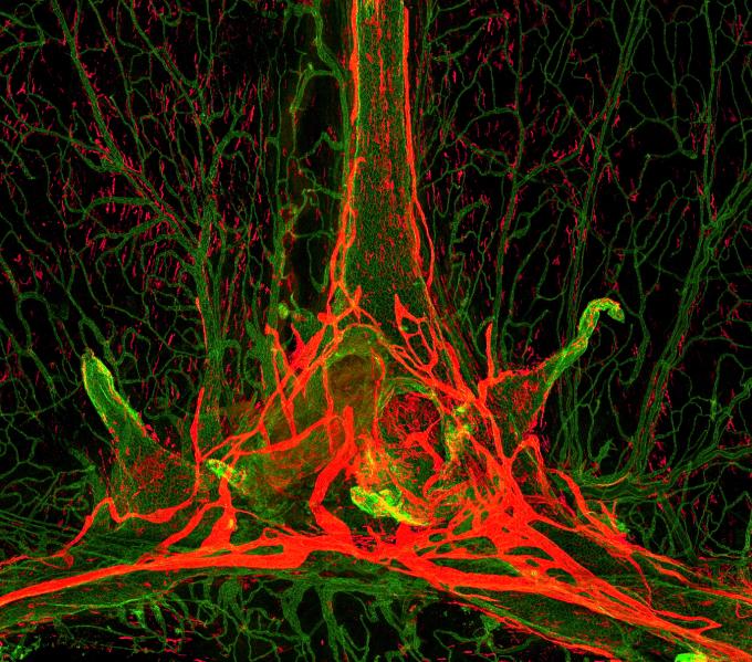 ′아트 인 사이언스′에 전시될 IBS 혈관연구단의 ′뇌 위에 모닥불′. IBS 제공