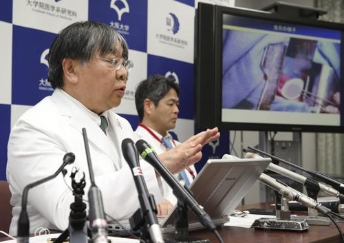 日 오사카대 연구팀, iPS세포로 만든 심장근육 세계 첫 이식