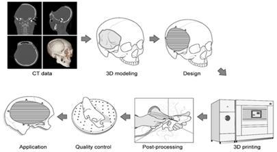 의료영상 기반 3D프린팅 보형물 제작, 한국 주도로 표준화