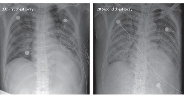 이달 6일(왼쪽)과 10일 촬영한 신종 코로나바이러스 확진 환자의 흉부 X선 영상이다. 폐에서 뿌옇게 보이는 부분이 더 나빠진 것을 확인할 수 있다. 랜싯 제공