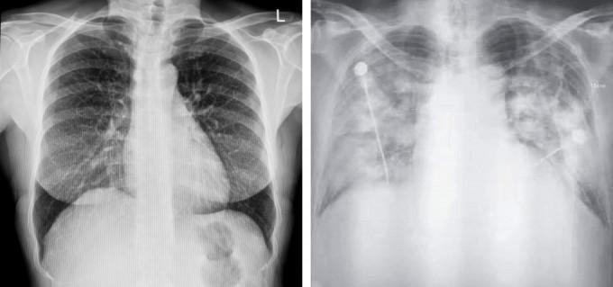 건강한 사람(왼쪽)과 신종 코로나바이러스에 감염된 환자(오른쪽)의 흉부를 컴퓨터단층촬영(CT)한 사진. 게티이미지뱅크, 뉴잉글랜드저널오브메디신 제공