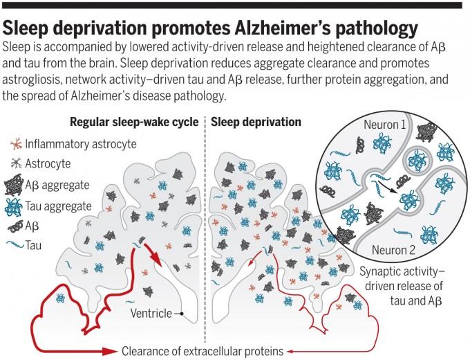 만성적인 수면장애는 치매의 위험성을 높인다는 연구결과가 잇달아 나오고 있다. 지난해에는 수면부족이 뇌에 이상 단백질인 아밀로이드베타와 타우 덩어리가 침착되는 걸 촉진한다는 사실이 밝혀졌다. 규칙적인 수면을 취하는 뇌(왼쪽)에 비해 수면부족인 뇌(오른쪽)에 아밀로이드베타 덩어리(Aβ aggregate)와 타우 덩어리(tau aggregate)가 더 많이 형성돼 있음을 보여주는 그림이다. ′사이언스′ 제공