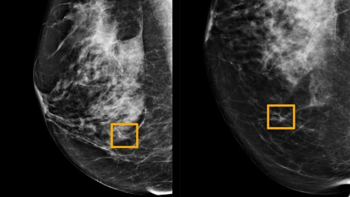 노란색 박스는 AI가 찾아낸 유방암 조직이다. 네이처 제공