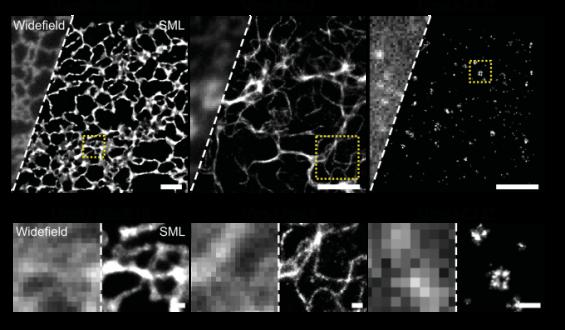 민물장어 형광단백질 이용해 살아있는 세포 관찰한다