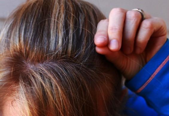 [강석기의 과학카페]스트레스는 어떻게 흰 머리카락을 늘리나