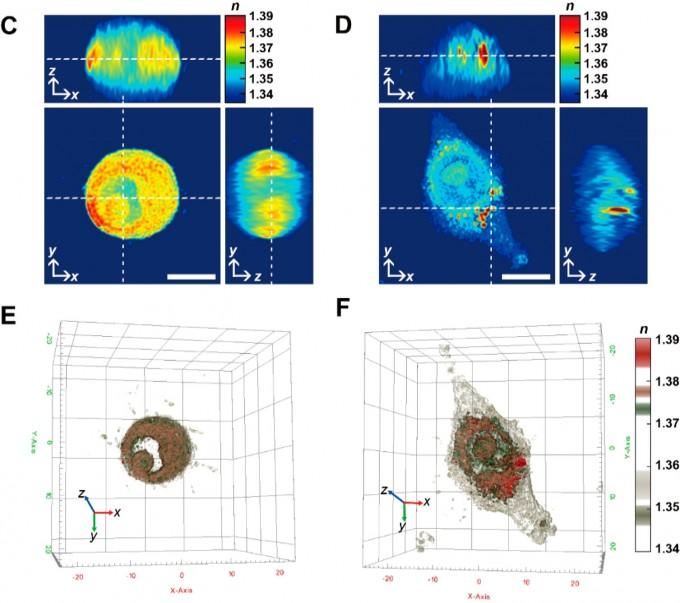 빛의 굴절률을 통해 분석한 대식세포(왼쪽)과 거품세포의 모습이다. KBSI 제공
