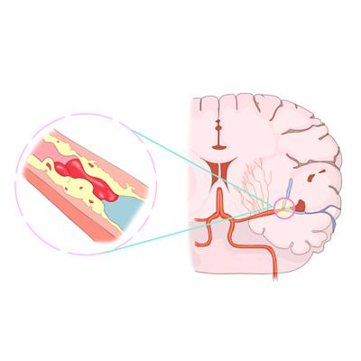 뇌졸중 치료제 tPA, 인공호흡기 대신할 수 있나?