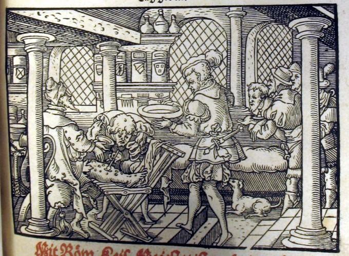 16세기 독일 프랑크푸르트에서 의사들이 매독 환자를 치료하기 위해 수은 연고를 바르고 있다. 영국 글래스코대 제공