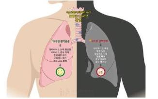 [IBS 코로나19 리포트] 코로나바이러스, 결국은 면역이다 (하)