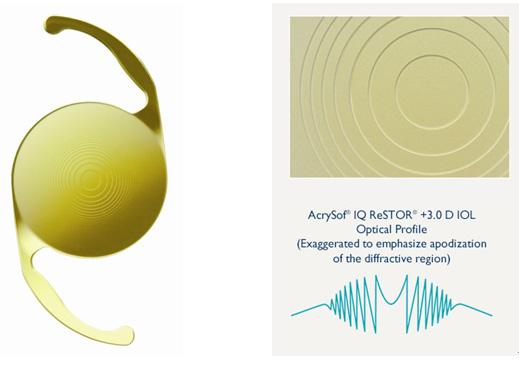 스위스 알콘의 레소토 인공수정체다. 12단 동심원 구조를 이용해 빛이 회절하게 해 여러 위치에서 초점이 맺히게 한다. 알콘 홈페이지 캡처