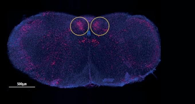 1 설탕의 구성 성분인 포도당을 섭취한 쥐의 뇌를 촬영한 사진. 뇌간에 위치한 고립핵 꼬리쪽 영역 (노란색 원)이 활성화된 것을 확인할 수 있다. 고립핵은 장기에서 느끼는 감각 신호를 받아들이는 영역이다. HWEI-EE TAN, ZUKER LAB, COLUMBIA′S ZUCKERMAN INSTITUTE 제공