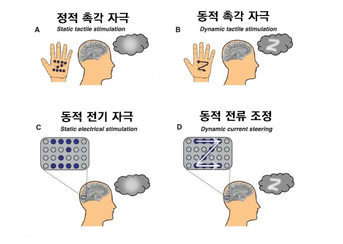 미국 베일러의대 연구팀은 최근 촉각과 청각에서 영감을 받은 소프트웨어적인 기술을 적용한 시각피질 보철 시스템에 대한 연구결과를 발표했다. 즉 손바닥에 어떤 패턴(여기서는 'Z')에 대한 정보를 줄 때 점을 동시에 누르면(위 왼쪽 '정적 촉각 자극') 형태를 파악할 수 없지만 순차적으로 누르면(위 오른쪽 '동적 촉각 자극') 쉽게 알 수 있다. 마찬가지로 시각피질에 부착한 전극에 전류를 동시에 흘려보내면(아래 왼쪽 '정적 전기 자극') 포스핀만 커질 뿐이지만 순차적으로 흘려보내며 가상 전극까지 만든다면(아래 오른쪽 '동적 전류 조정') 글자를 쉽게 '볼 수' 있다. 셀 제공