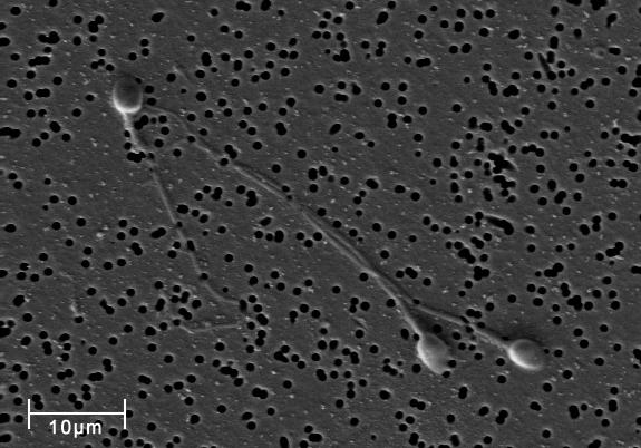 전자주사현미경으로 3,140배 확대한 인간의 정자. 위키피디아 제공