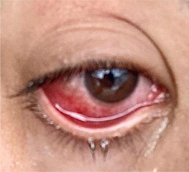 '핑크아이'도 코로나19 증상 가능성'다양해지는 증상들'