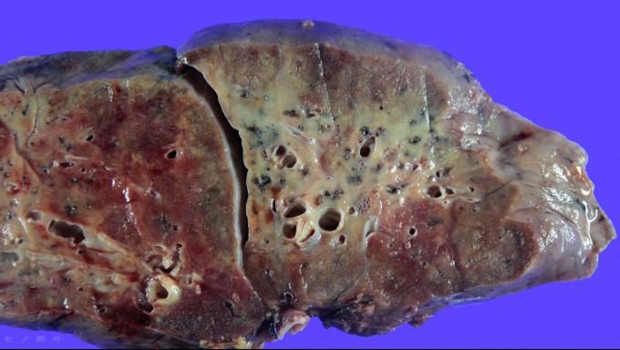 코로나19 환자의 폐 단면사진. 한림대 성심병원 제공