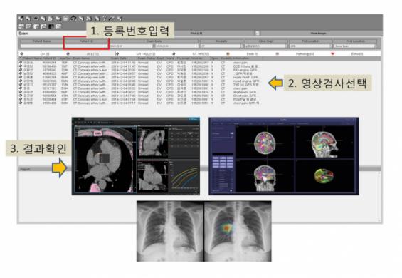 360억원 들여 육성한 국산 AI 전문의 '닥터앤서' 사우디서 검증 들어간다
