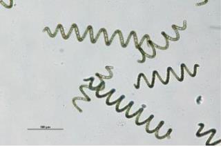 해양 미세조류서 '기억력 최고 90% 개선' 물질 추출