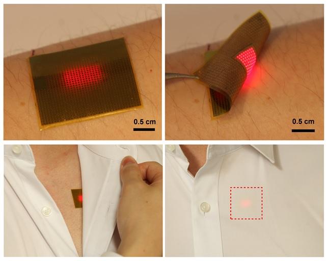 이종호 광주과학기술원(GIST) 교수팀은 마이크로LED를 이용해 체내 태양전지 삽입 헬스케어 기기에 빛을 쪼여 전력을 공급하는 패치를 개발했다. 다양한 헬스케어 기기 활용에 도움이 될 것으로 기대된다. GIST 제공