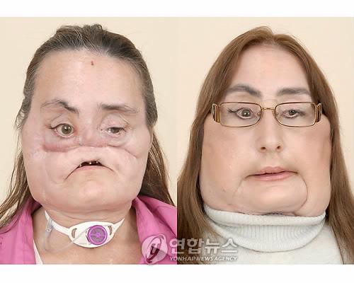 미국 첫 얼굴 전체 이식 여성 12년만에 사망