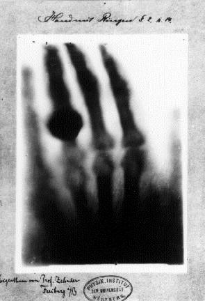 독일의 물리학자 빌헬름 뢴트겐이 촬영한 최초의 인간 X선 사진. 위키피디아 제공