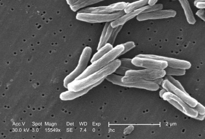 결핵균을 전자 현미경으로 확대했다. 위키피디아 제공