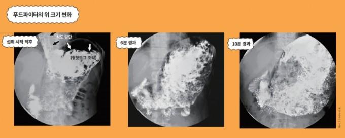 전문 푸드파이터가 10분 동안 36개의 핫도그를 먹을 때의 위장 변화를 형광 투시 기법으로 촬영한 사진. 핫도그를 연이어 섭취하자 위는 상복부에서 확장되기 시작했으며, 10분 뒤에는 상복부의 대부분을 차지할 정도로 엄청나게 팽창했다. 그동안 위는 소화를 위한 연동운동을 거의 하지 않았다. Marc S. Levine et al. 제공