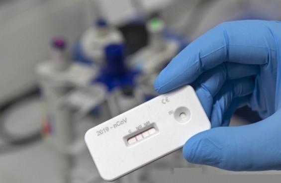 코로나19 항체 진단키트 표준화할 기준 수치 정한다