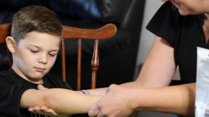 _가을에 태어난 아이는 아토피 발생 위험성이 높다는 연구결과가 여럿 있다. 10월에 태어난 6살 소년은 아기 때 아토피를 앓은 뒤 아토피 행진으로 이어져 식품알레르기가 생겼다. 미국립유태인병원 제공