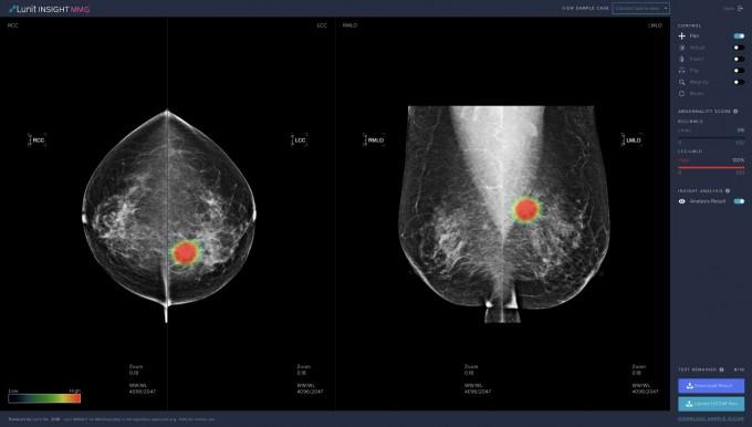 유방암 영상 분석에 사용된 ′루닛 인사이트 MMG′ 데모 스크린샷이다. 루닛 제공.