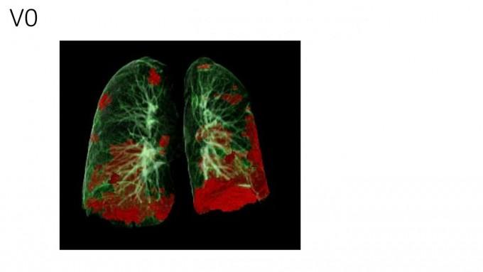 코로나19 환자의 폐 손상을 나타내는 CT 이미지. 붉은 색이 손상된 영역이다. 인스브룩메디컬대학 제공.