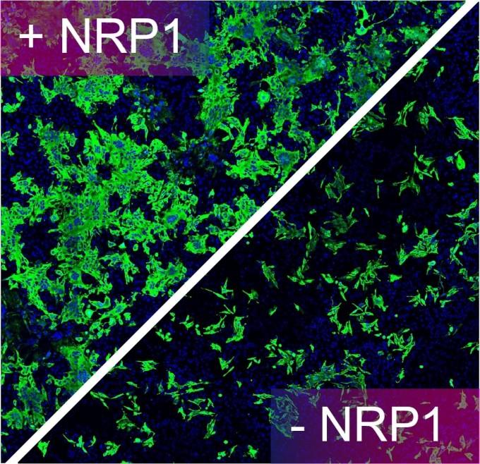 인체 세포에서 뉴로필린-1 단백질을 차단 이전(왼쪽)과 이후(오른쪽) 비교 사진. 뉴로필린-1을 차단하면 인체 세포 안에서 코로나 바이러스의 단백질(녹색)이 많이 줄어들었다. 영국 브리스톨대 제공