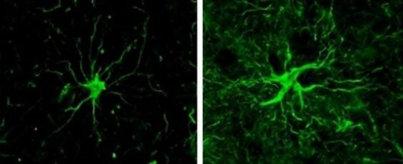 '뇌 속 독성 산소' 영향받는  반응성 별세포가 치매 원인