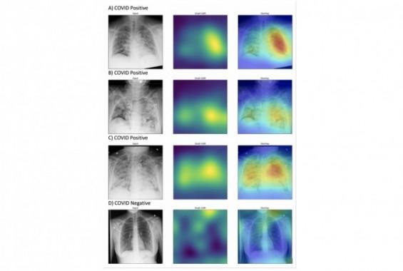 흉부 엑스레이로 코로나19 환자 빨리 찾는 AI 의사 나왔다