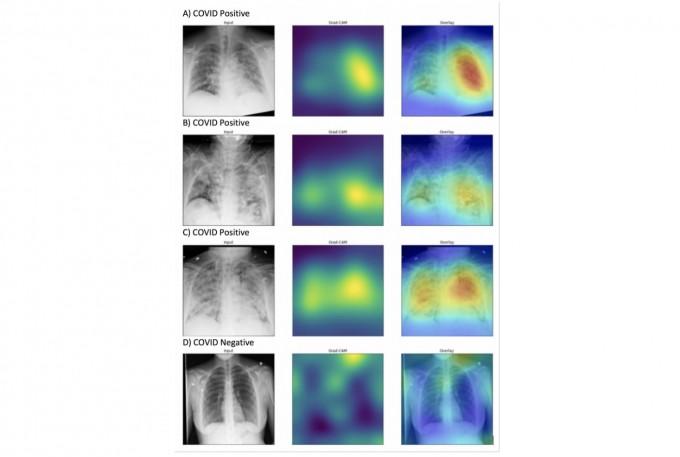 코로나19 환자의 흉부 엑스레이는 폐가 흐릿하게 보여지지만(A, B, C) 건강한 사람은 폐가 투명하게 나타난다. 노스웨스턴대 제공.