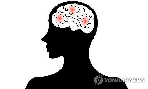 술 '조금만' 마시면 뇌졸중 예방?…