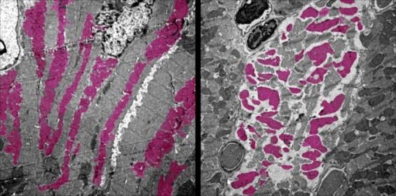 몸속 장기 공격한 코로나19 바이러스, DNA까지 변형시켜 합병증 오래 남긴다