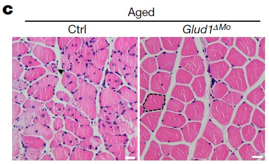 사람으로 치면 60세 노인에 해당하는 생후 18개월 된 생쥐의 근섬유 단면 사진으로 왼쪽이 정상 생쥐이고 오른쪽이 Glud1 유전자가 고장난 변이 생쥐다. 변이 생쥐는 근육의 대식세포가 글루타민을 더 많이 만들어내 근육 노화(감소)가 늦어진 것으로 보인다. 네이처 제공
