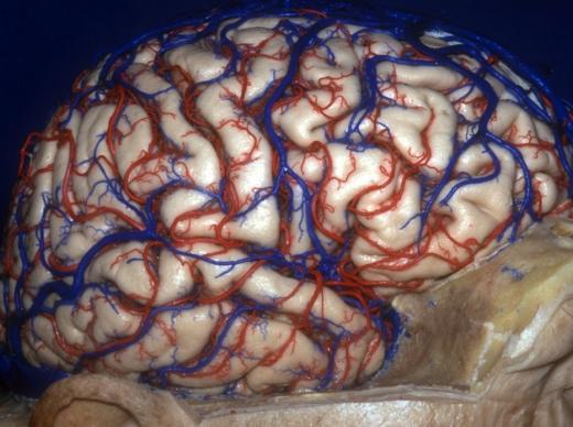 상어의 뇌 vs. 돌고래의 뇌