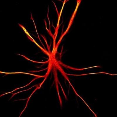 뇌의 별 모양 세포, 새로운 '수면 조절' 기능 발견