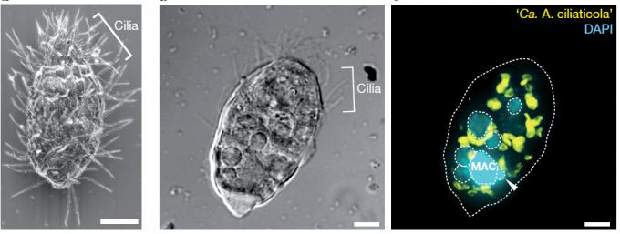 스위스 추크호수 심층수에서 사는 섬모충의 주사전자현미경 이미지(왼쪽)와 차등간섭대비현미경 이미지(가운데), 공초점레이저주사현미경 이미지(오른쪽)다. 오른쪽 내부의 노란 덩어리들이 질산염 호흡을 하는 공생 박테리아다. 네이처 제공