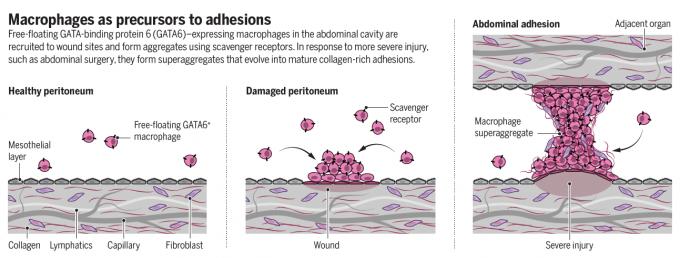GATA6+ 대식세포가 복강 내 상처 부위를 봉한하는 과정과 유착이 생기는 과정을 나타낸 그림. 유착은 분리돼 있어야 할 두 조직이 연결되는 현상으로 외과수술을 받은 환자에게서 많이 나타난다. 불임, 만성 통증 등을 유발하며 증상이 심할 경우 재수술이 필요할 때도 있다. 사이언스 논문 캡처