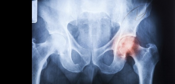 딥러닝으로 어린이 엉덩이 관절 탈구 의사만큼 정확하게 진단한다