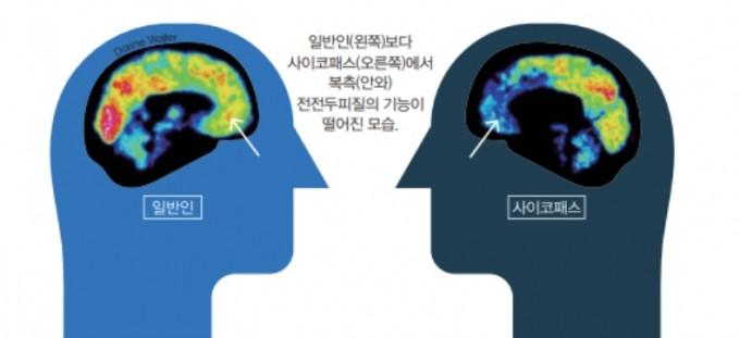 사이코패스는 대체로 감정과 공감을 담당하는 노의 ′복측(안와)전전두피질′에 손상이나 기능이 떨어지는 공통점이 나타났다. 어린이과학동아DB