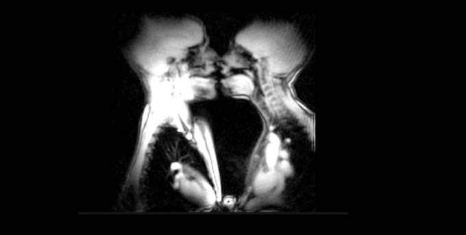MRI 스캐너로 촬영한 남녀의 키스 장면. 유투크