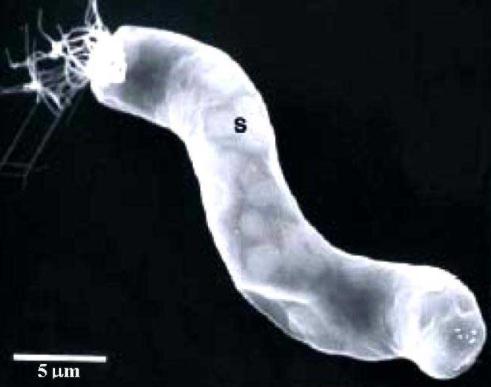 지상의 미생물체인 남조류(시아노박테리아). 우주론과 입자물리학회지 제공