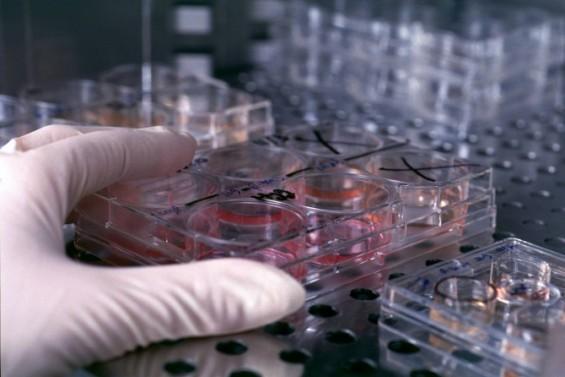 백신 혈전증 인종별 왜 다른가 했더니…의학연구용 세포주 95% 유럽계