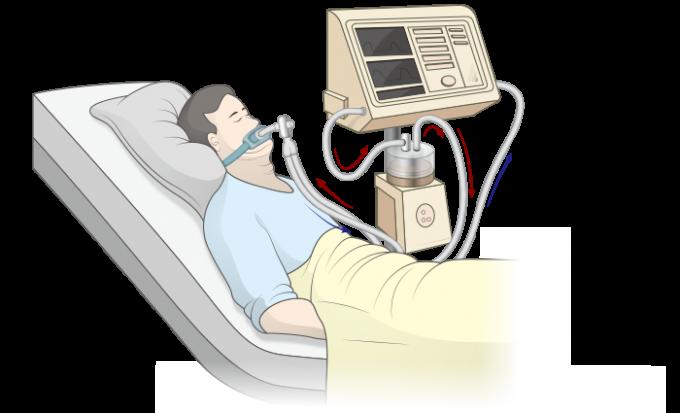 폐렴 등 여러 이유로 폐활량이 크게 떨어져 자발적 호흡만으로는 생존할 수 없는 환자들이 인공호흡기 덕분에 목숨을 구할 수 있다. 그러나 코로나19 같은 팬데믹으로 환자가 급증하면 모두가 혜택을 받을 수 없는 상황이 발생할 수 있다. 한편 인공호흡기 사용으로 회복 뒤 폐 기능 저하 등 여러 부작용이 나타날 수 있다. 대한중환자의학회 제공